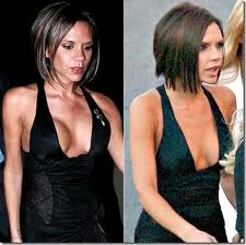 Victoria beckhams boob implants