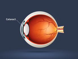 Diagram of a cataract
